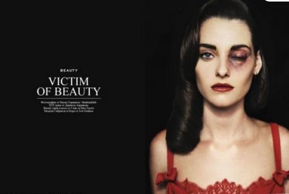 Polmica sesin de fotos de moda con mujeres golpeadas  MDZ Online