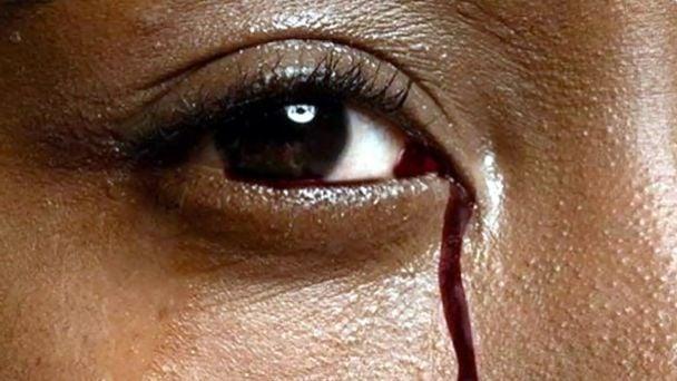 Un caso muy extraño: una joven sangra por los ojos al menstruar | MDZ Online